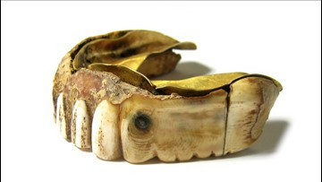 Golden Gums! 200-Year-Old Gold Teeth Made of Ivory & Gold Set to Go for Thousands at Auction!