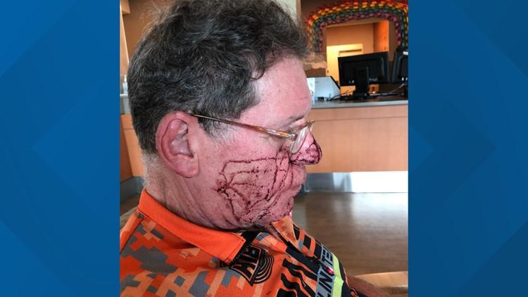 Jay Hamlin after attack