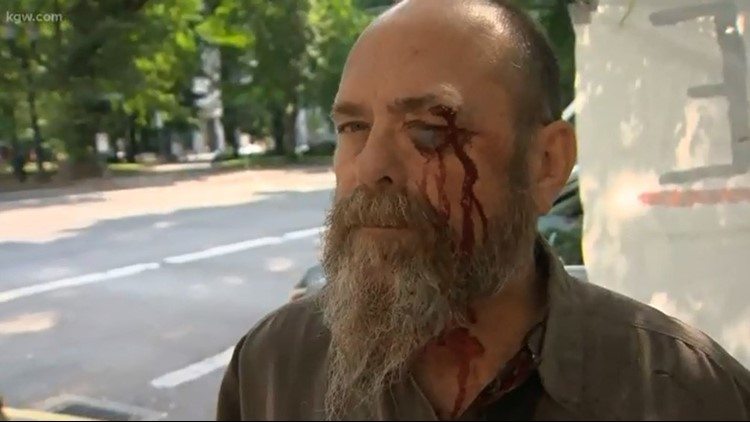 Police say this man was assaulted by an Abolish ICE protester on Aug. 9, 2018.Assault_1533842030828.jpg