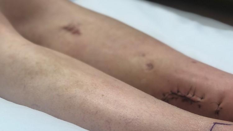 Lisa Barker injuries