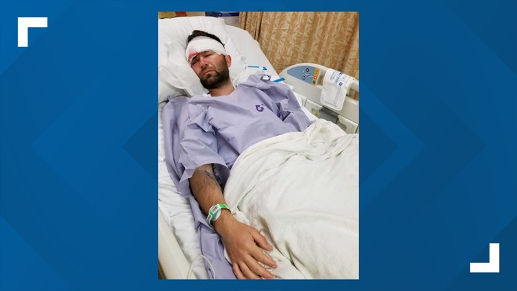 Paul Dovgan in the hospital after the attack