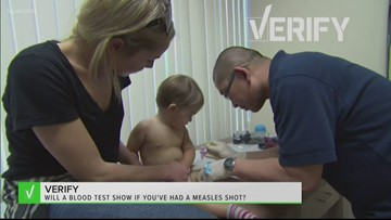 Good to know: Can a test tell if you have been vaccinated against the measles
