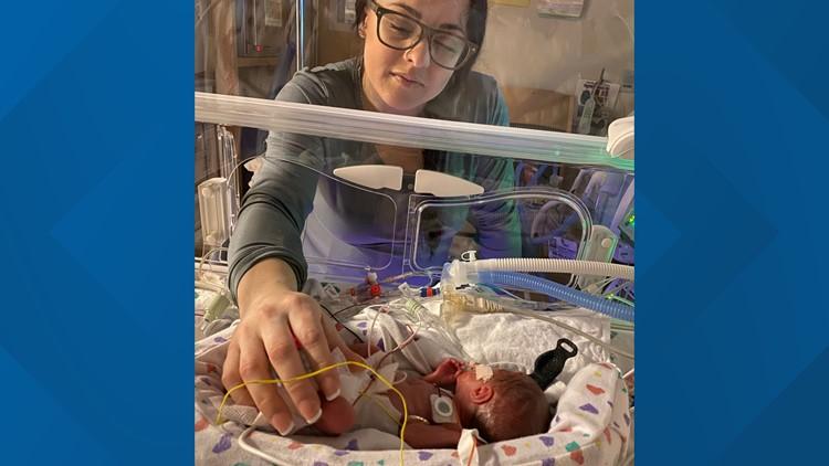 Babies born at 24 weeks