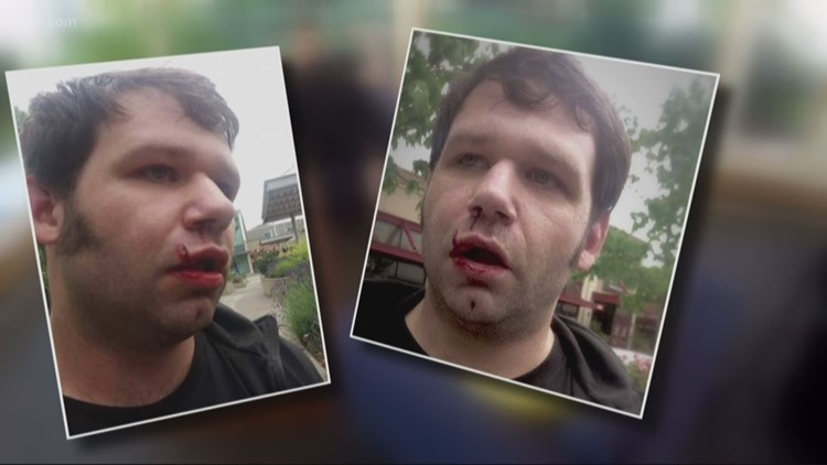 Attack victim: Far-right protesters indicted